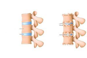 ravi valus sormede liigestes mycoplasma ureaplasm slash valu