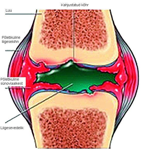 reumatoida poluartriidi liigeste ravi