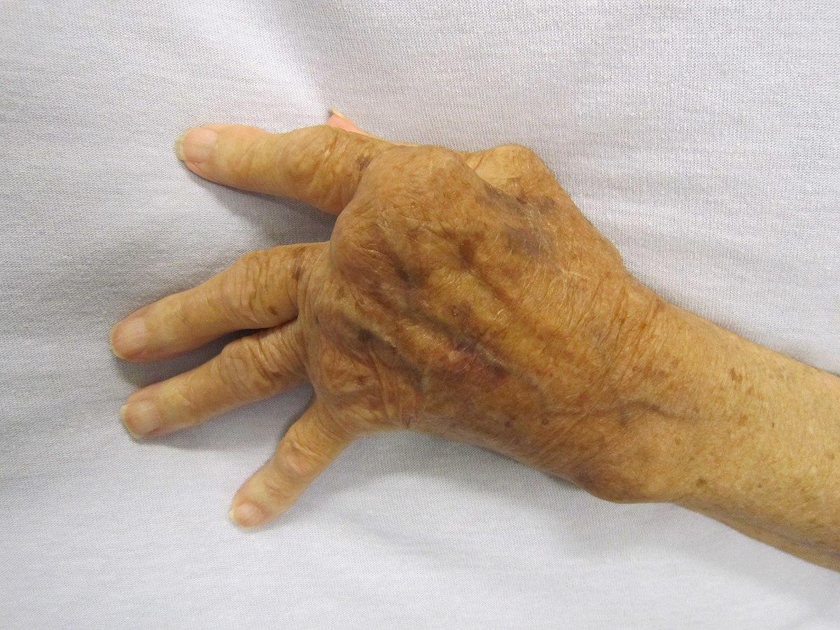 rheumatoida artroosi rahvavabariikide ravi glukoosamiini kondroitiini komplekshind