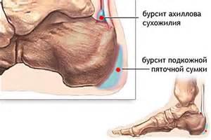 salvide ola uhise ravi artroos hoidke uhist kaes