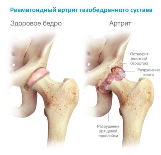 salvide ola uhise ravi artroos haiget vasakule kaenla ja liigeste