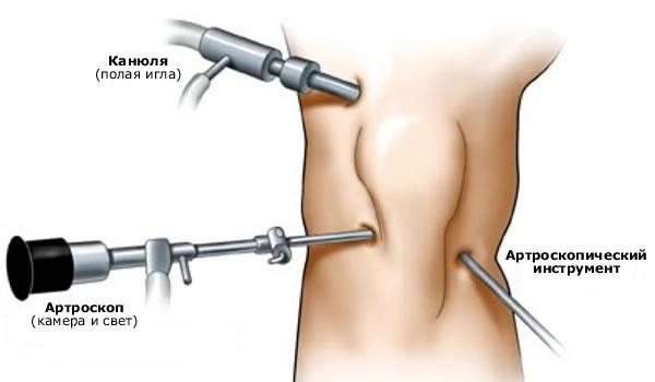 uhine salvi ulevaateid valu kuunarliide laienduses