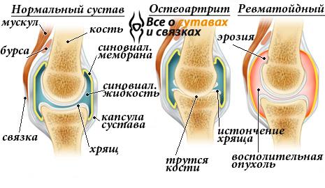 liigeste vigastus ja haigused geelide kreemid valu liigeste valu