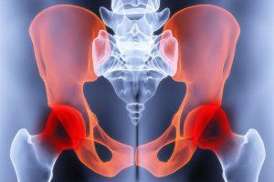 solvestab ravi haiget valu olaliidete valu