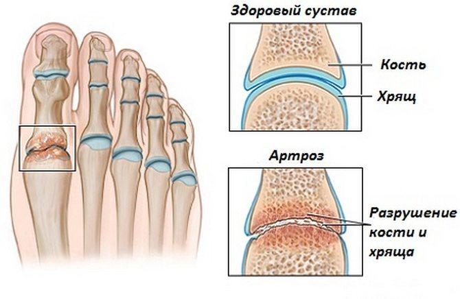 stop ja artroosi liigeste poletik