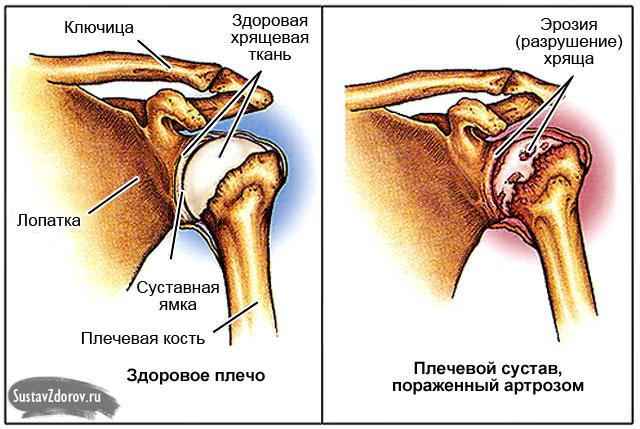 artriit ja artroos ja nende ravi