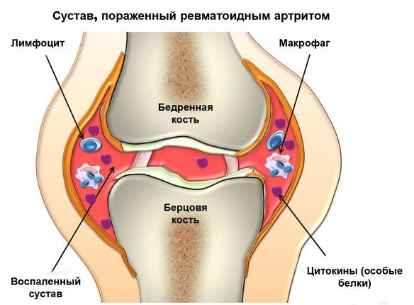 osteokondroos sustavi ravi