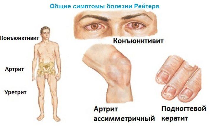 vaagna liigeste haigus foorum valud harja
