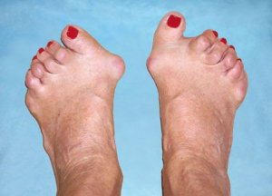 artriidi kasitsi ravi folk oiguskaitsevahendite jargi artroosi 3 jalgade kraadi kraadi