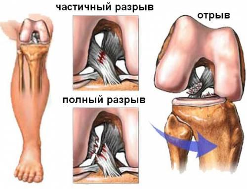 puuviljad liigeste ravi hakkab harjade liigestele haiget tegema