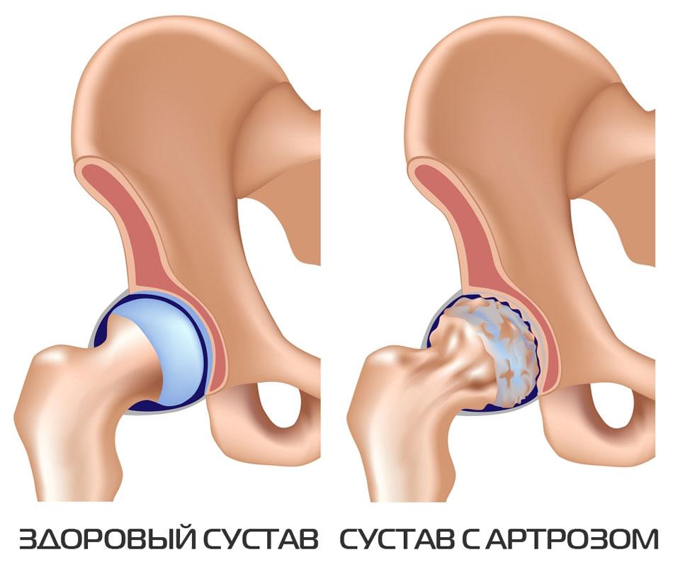 uhine ravi bb-s valu ola liigese valuvaigistavates